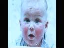 Especialistas alertam sobre a dermatite atópica